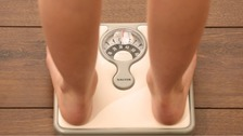 Obesity to be biggest preventable cause of cancer in women