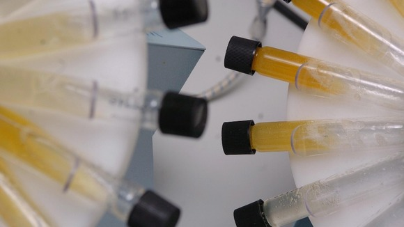 No more sending samples to the lab - now you can test your urine on your smartphone