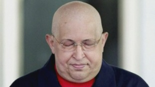 Hugo Chavez bears his bald head after chemotherapy treatment