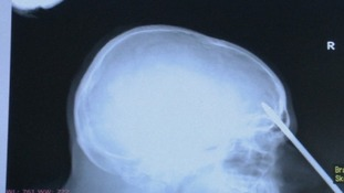 X-ray image shows how far the screwdriver penetrated the patient's skull