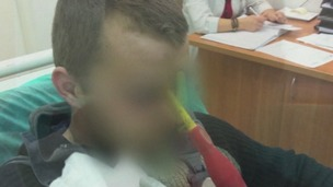 A Polish man, with his identity concealed, is seen with the screwdriver in his head