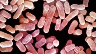 Microscope image of a drug-resistance superbug