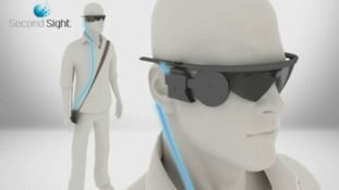 Bionic eye helps blind people to see