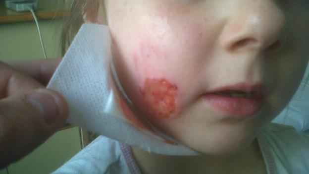 facial cheek develops deep pit