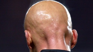 Bald men have 'higher risk of developing heart disease'