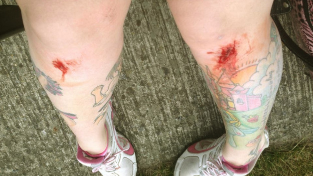 Emily Alner sent ITV News an image of the injuries she sustained from the emergency landing