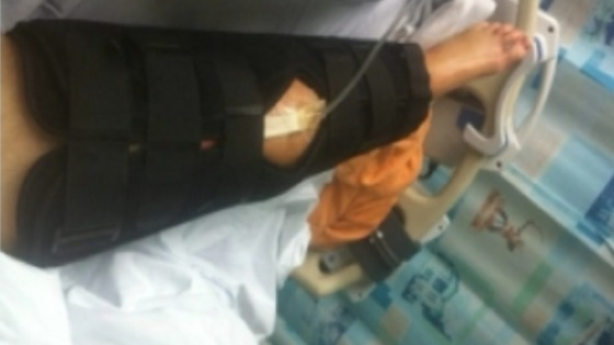 Jake Weir's injured leg.