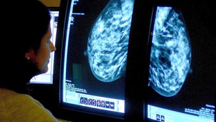 A consultant analyzing a mammogram.
