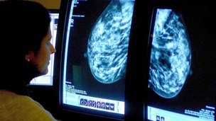 A doctor looking at a mammogram X-ray.