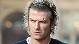 It was rumoured that Beckham's eye injury was accidentally inflicted by his manager