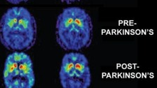 Common diabetes drug could treat Parkinson&#x27;s disease