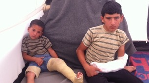 Ahmad, 4, and his brother Mohammad, 14, were wounded when a shell hit their kitchen in Deraa