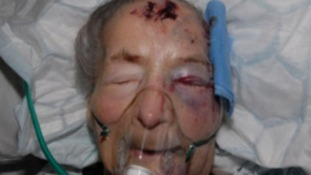 Emma Winnall, 94, was attacked at her home in Moseley a year ago