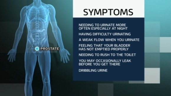Stand By Your Man Campaign Prostate Cancer Symptoms