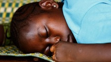 A Sierra Leonean girl who had her hand amputated by RUF rebels in January 1999 sleeps in a refugee camp in Freetown in this May 16, 2000