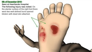 A police image illustrating some injuries identified on Keanu Williams' foot in December 2010.