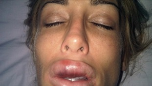 Lady with extremely swollen lips after beauty treatment gone wrong