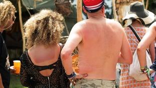 Festival-goers with sunburn on their back at the Glastonbury Festival,