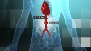 An aneurysm within the aorta