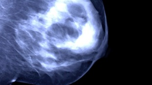 Generic stock picture of a mammogram.