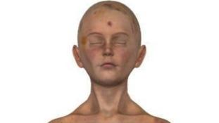 Daniel Pelka's head was covered in bruises.