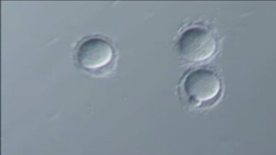 Scientists discover fertility gene