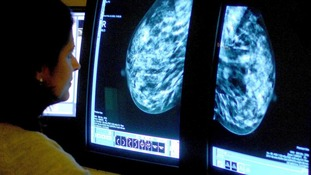 Scientists believe a 'gene switch' could identify potential cases of breast cancer