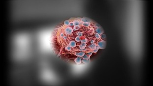Scientists claim 'Gene switch' can help to identify potential breast cancer cases