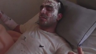 Images from Syria show people being treated for severe burns after what could have been an incendiary attack.