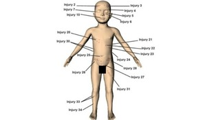 A police image illustrating some of the 37 injuries identified on the body of Keanu Williams.