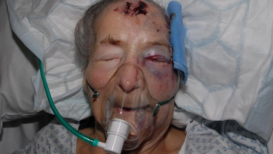 94-year-old Emma Winnall was attacked as she slept at her home in Moseley, Birmingham.