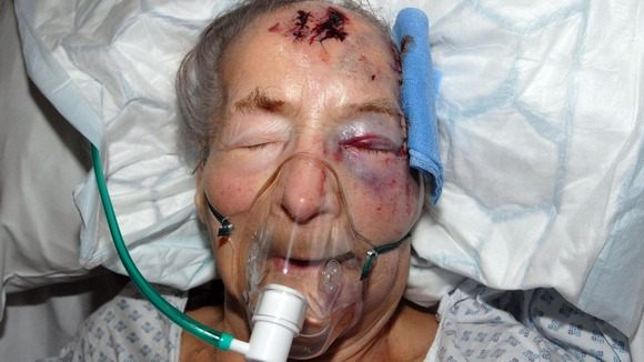 Emma Winnall, who is 94, was attacked in her bed in Birmingham.