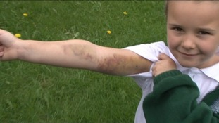 Bruised arm of Peyton Jackson, 5, who escaped fire by jumping out of window onto trampoline with family