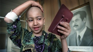 Marwa Najem, 11, examines her missing hair whilst undergoing treatment for leukemia in Baghdad's Children's Hospital.