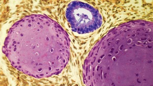 A testicular cancer tumour, seen under a microscope inside a testis. The tumour is between 10 and 30 years of age.