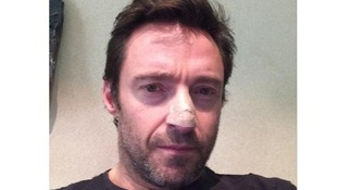 Hugh Jackman posted a picture of his nose after being treated for skin cancer.