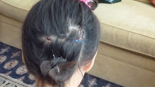 The scars left on nine-year-old Amy Hryhoruk's head after the attack