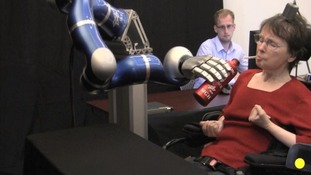 Cathy Hutchinson controls the robot arm by imagining the movement