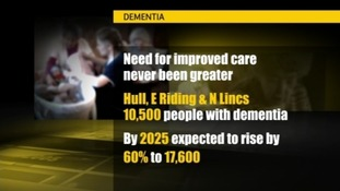 Dementia 'Underfunded'
