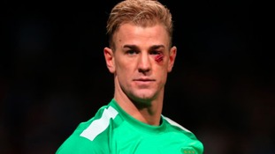 Manuel Pellegrini says there's no risk playing Joe Hart despite the goalkeeper suffering cut eye