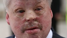Falklands war veteran Simon Weston has called for a more realistic portrayal of injured service personnel.