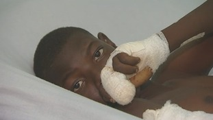 A 13-year-old boy who had his fingers deliberately cut off.