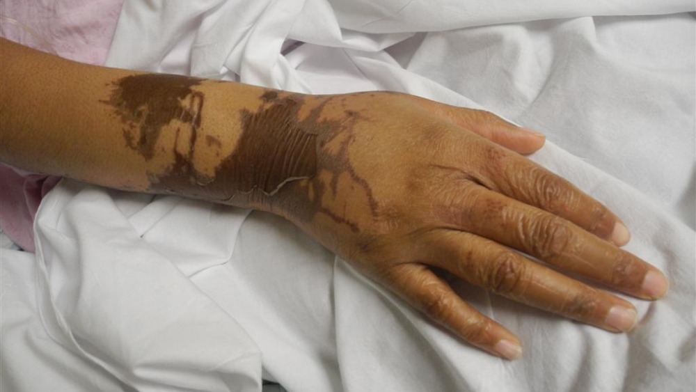 Naomi Oni S Injuries Caused By Friend S Acid Attack