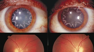 An electrician was left with stars in his eyes after an electric shock.