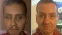 Dad has face rebuilt by surgeons using 3D technology