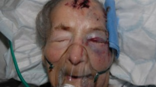 Pensioner attacked in her bed has died