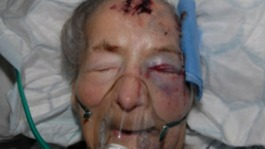 93 year old Emma Winnall who was found badly beaten in her bed in Moseley earlier this month – has passed away in hospital this morning.