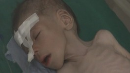 Starving girl footage reveals horrors of Syrian conflict