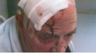 84-year-old pensioner Michael Green had to undergo surgery after the attack