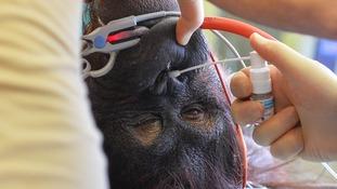 Orangutan on operating table
